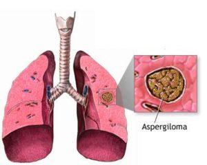 La aspergilosis es una infección pulmonar aguda causada por el hongo del género Aspergillus.